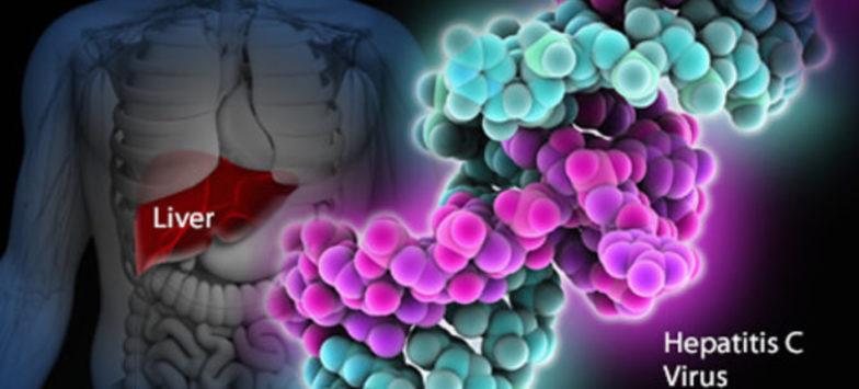 Karaciğer kanseri. Semptomlar, klinik, tedavi