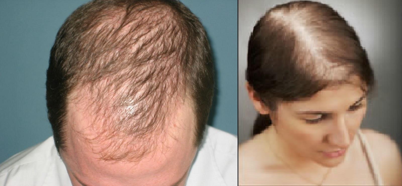 Saç Dökülmesi, Saç Dökülmesine çözüm, Saç Dökülmesine Ne İyi Gelir Ve Saç Dökülmesinin Nedenleri Nelerdir