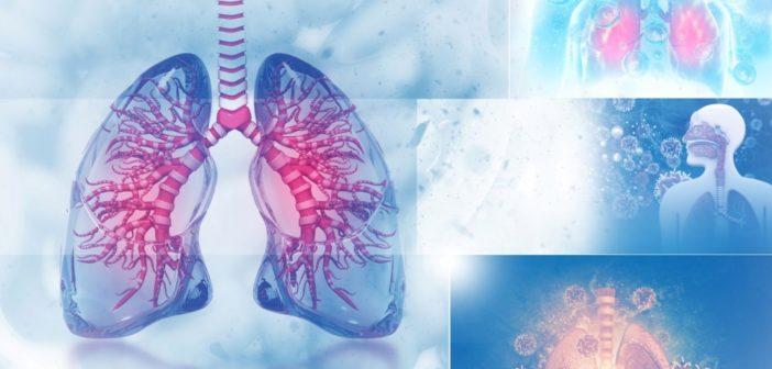 Ülkemizde En Sık Görülen Akciğer Kanseri